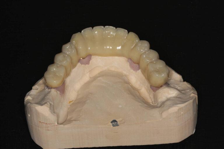 Implantat-Brücke2